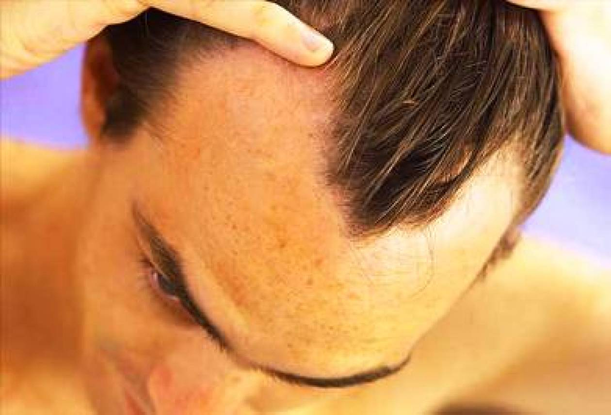 Ανακαλύφθηκε  χημική ουσία κατά του στρες και της φαλάκρας