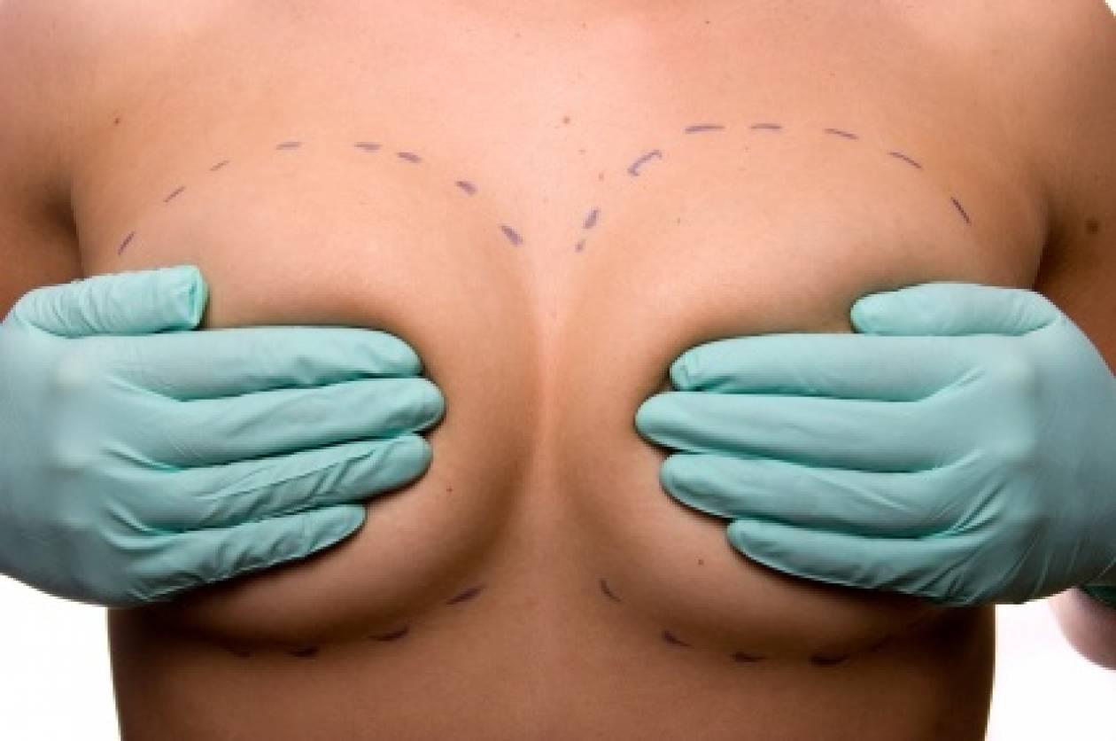Αυξητική στήθους - Τι πρέπει να γνωρίζω;