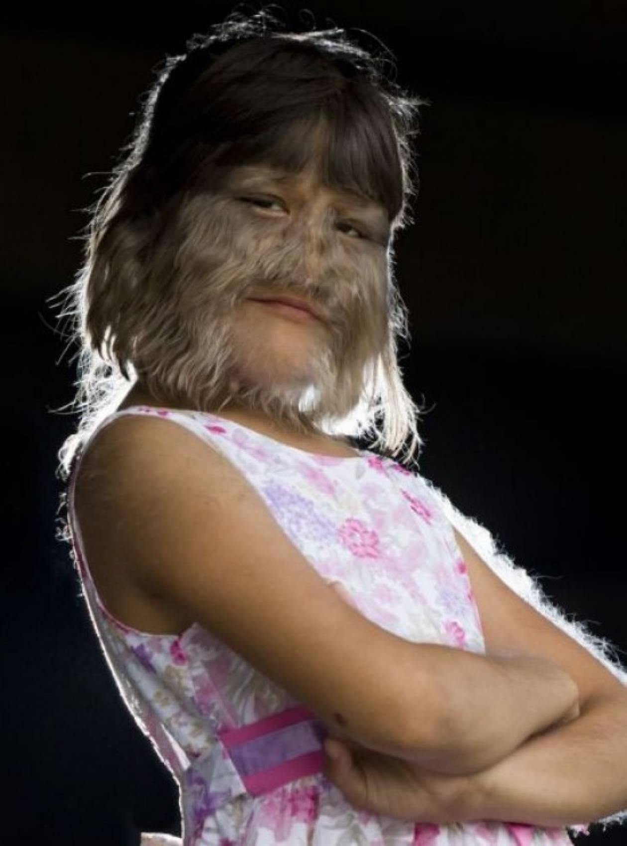 Το πιο τριχωτό κορίτσι στον κόσμο!