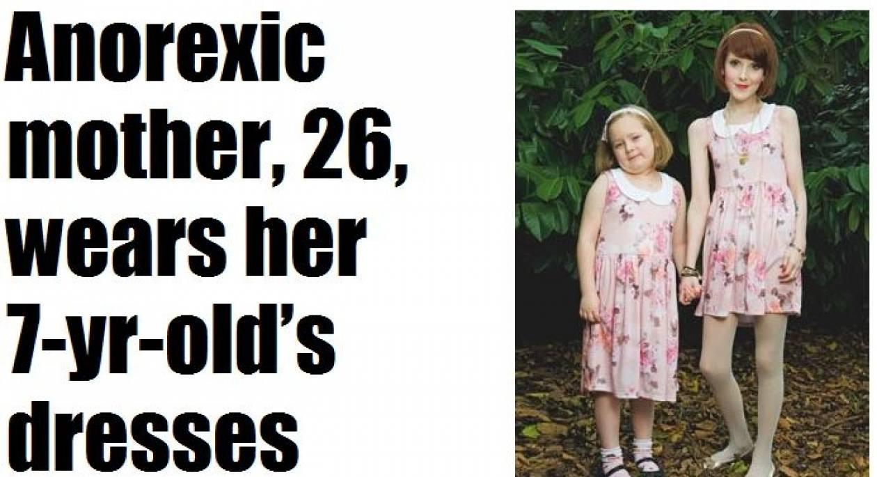 Ανορεξική μητέρα φοράει ίδια ρούχα με την επτάχρονη κόρη της