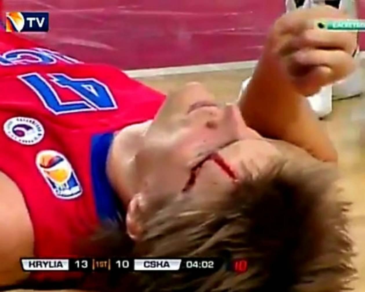 Δείτε τον σοκαριστικό τραυματισμό του Κιριλένκο της ΤΣΣΚΑ