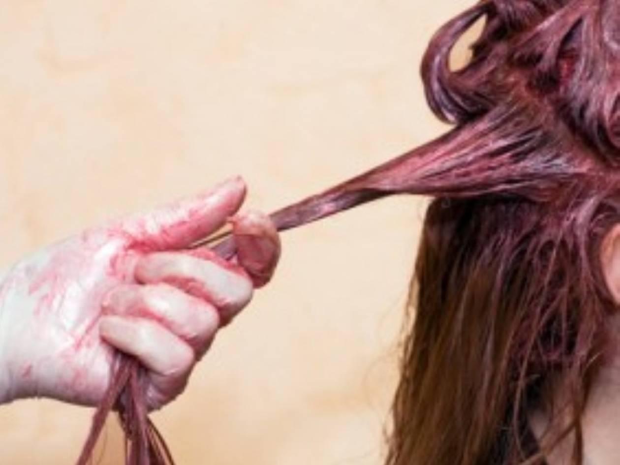 Εβαψε τα μαλλιά της και έπεσε σε κώμα