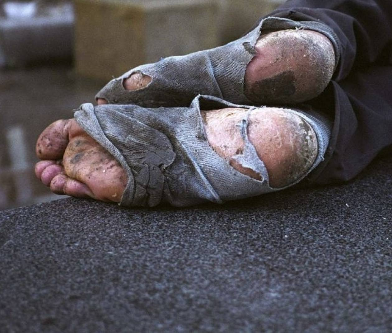 Άστεγος πήρε φωτιά από την λάμπα του