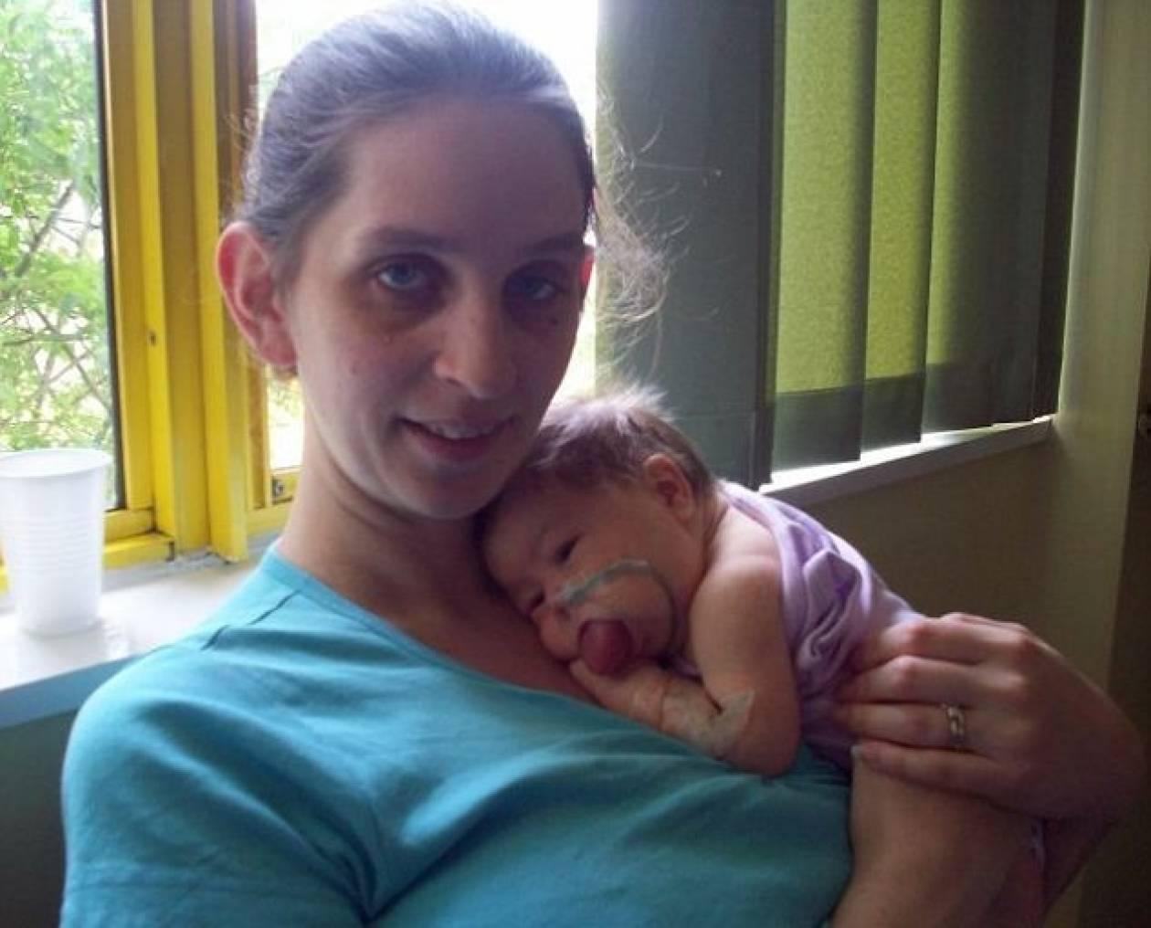 Συγκλονιστικό: Η γλώσσα της μεγάλωνε συνέχεια από τότε που γεννήθηκε