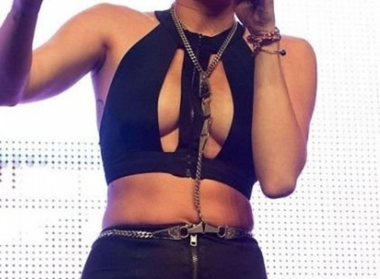 Ποια 20χρονη τραγουδίστρια έκανε αυξητική στήθους;