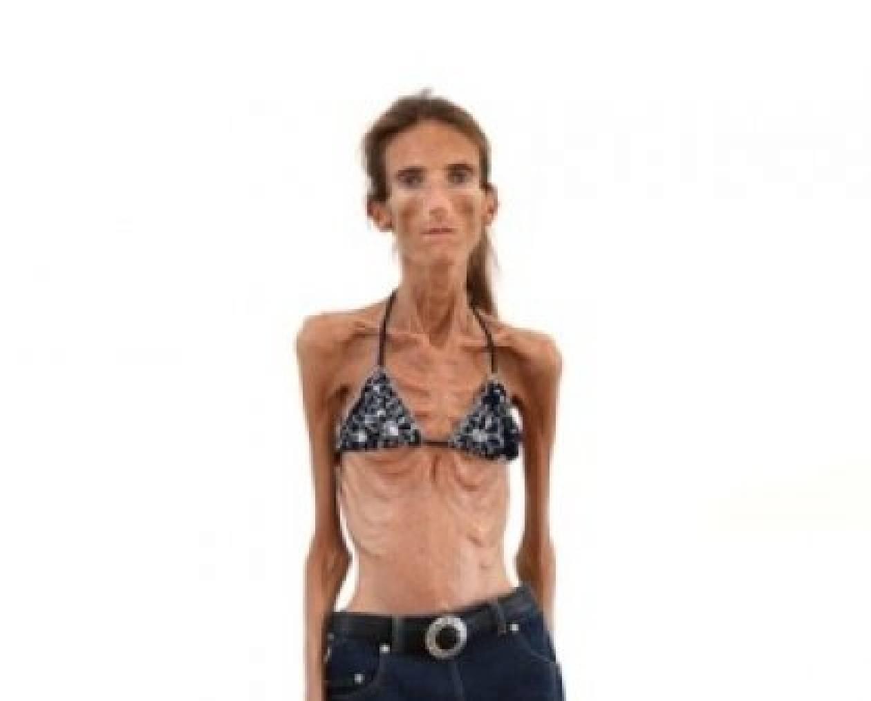 Η σοκαριστική εξομολόγηση της πιο αδύνατης γυναίκας στον κόσμο
