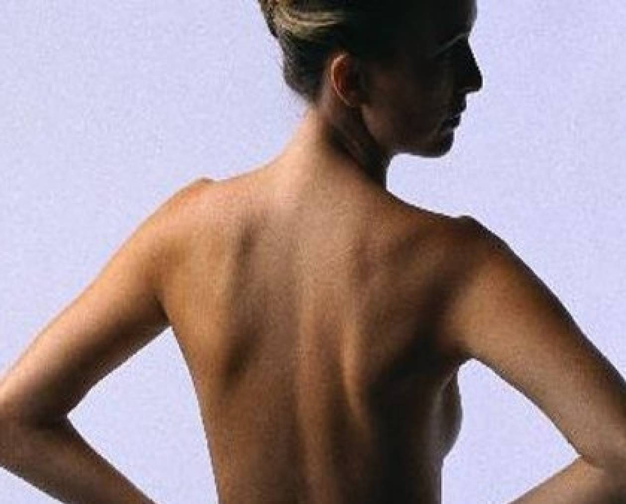 10 tips για να γλιτώσετε από τους πόνους της μέσης