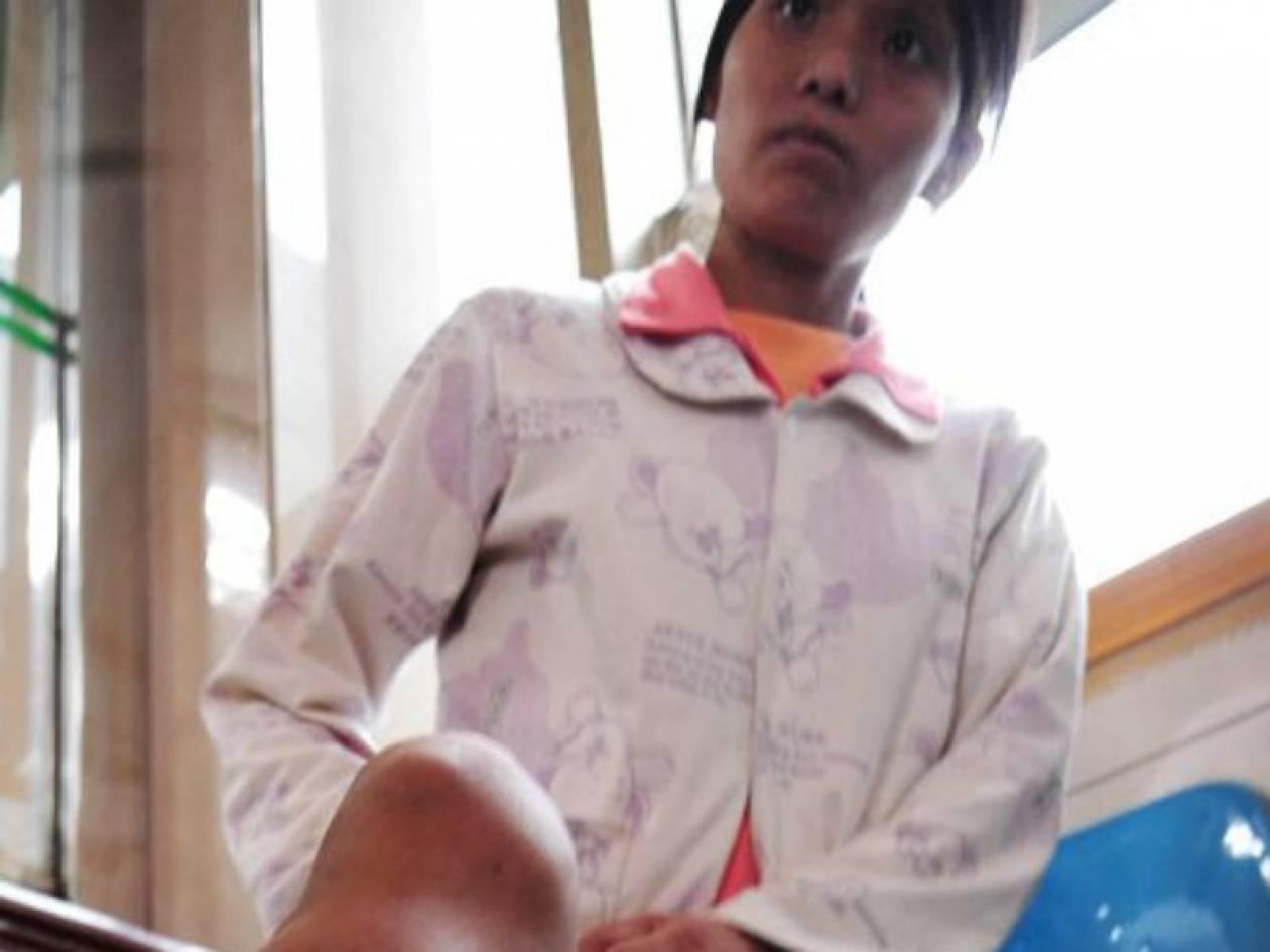 Σοκαριστικό: Δείτε τι έπαθε το πόδι της από μία μελανιά