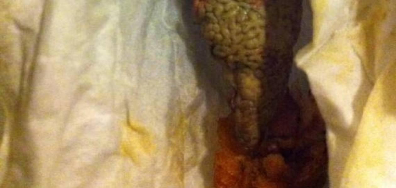 Δείτε τι αηδιαστικό βρήκε μέσα σε φαγητό που πήρε από fast food (pic)