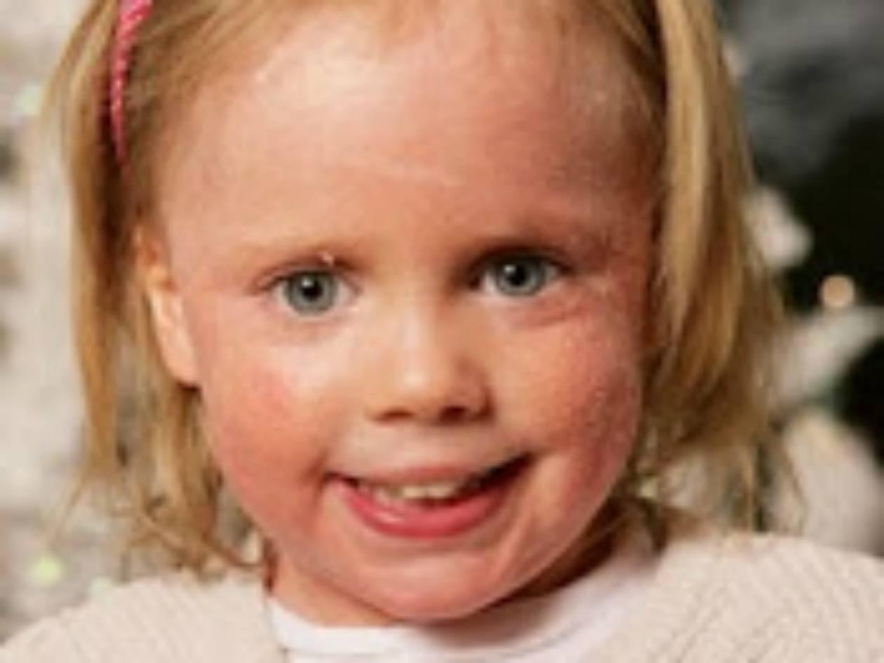 Ένα 5χρονο κορίτσι που «αλλάζει» δέρμα κάθε μέρα!