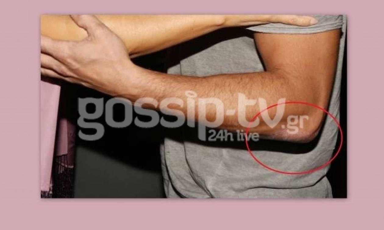 Έλληνας ηθοποιός έχει σοβαρό δερματικό πρόβλημα και δεν το κρύβει