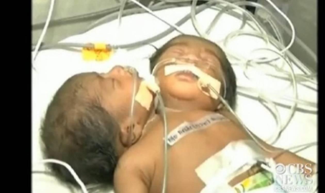 Δίνουν μάχη για να κρατήσουν στη ζωή μωρό με δύο κεφάλια