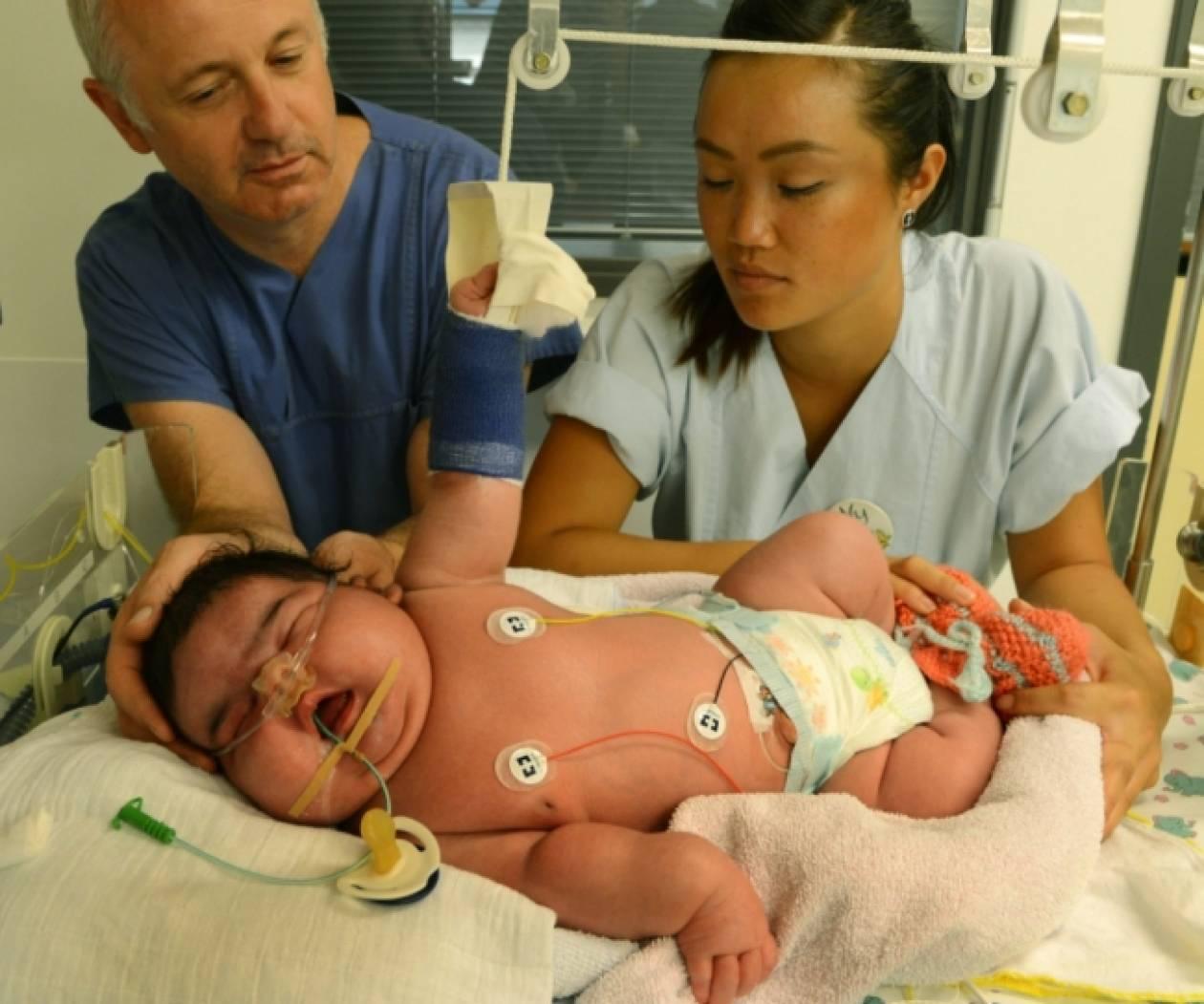 Απίστευτο: Γεννήθηκε γιγαντιαίο βρέφος χωρίς καισαρική