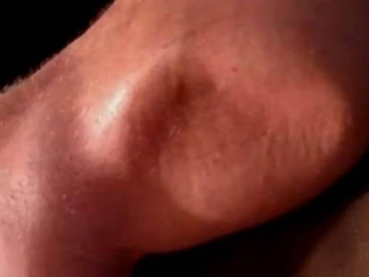 Βίντεο: Κράμπα βγαλμένη απο εφιάλτη!