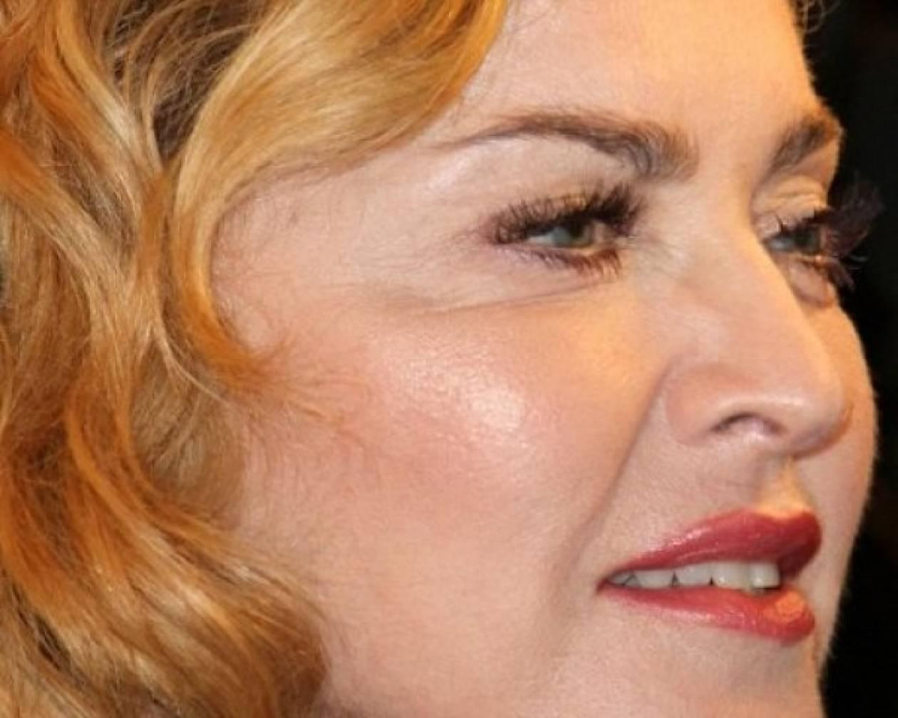Το πρόσωπο της Madonna... πάγωσε!