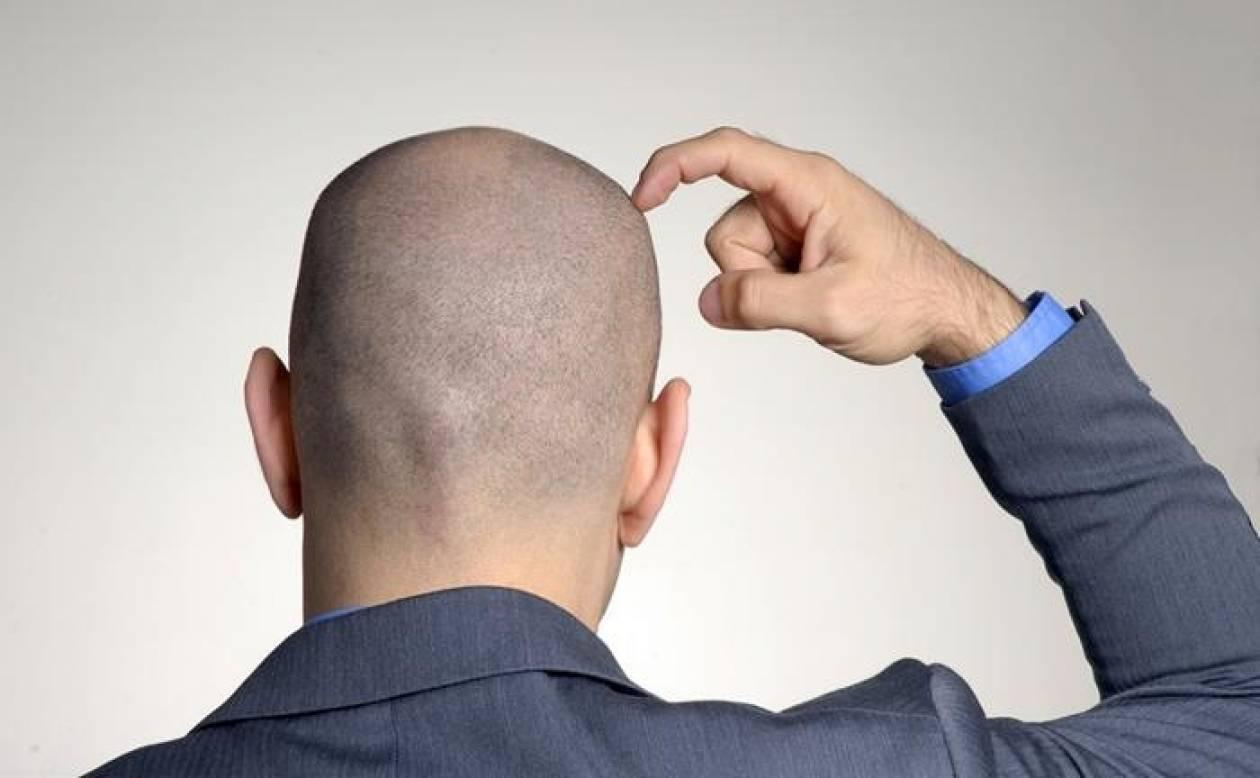 Πότε αρχίζουν να πέφτουν τα μαλλιά στους άνδρες