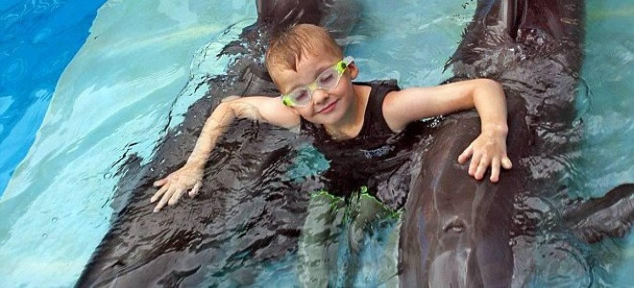Παιδί με προσθετικά πόδια κολυμπάει με δελφίνι με προσθετική ουρά!