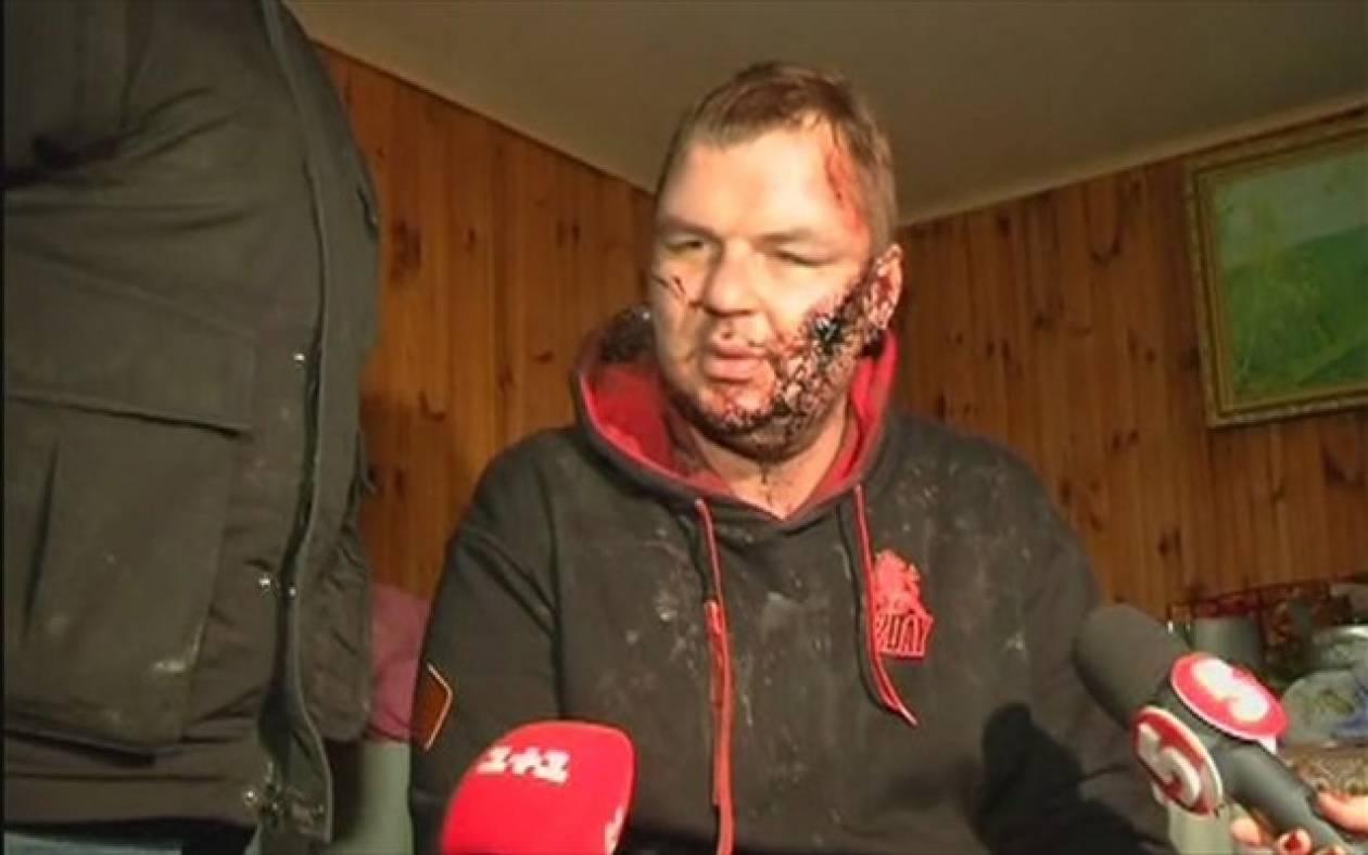 Ουκρανία: Σε κατ' οίκον περιορισμό ο ακτιβιστής Ντμίτρο Μπουλάτοφ