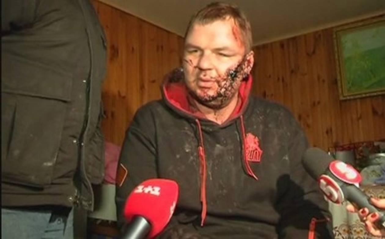 Στη Λιθουανία ο Ουκρανός ακτιβιστής που βασανίστηκε