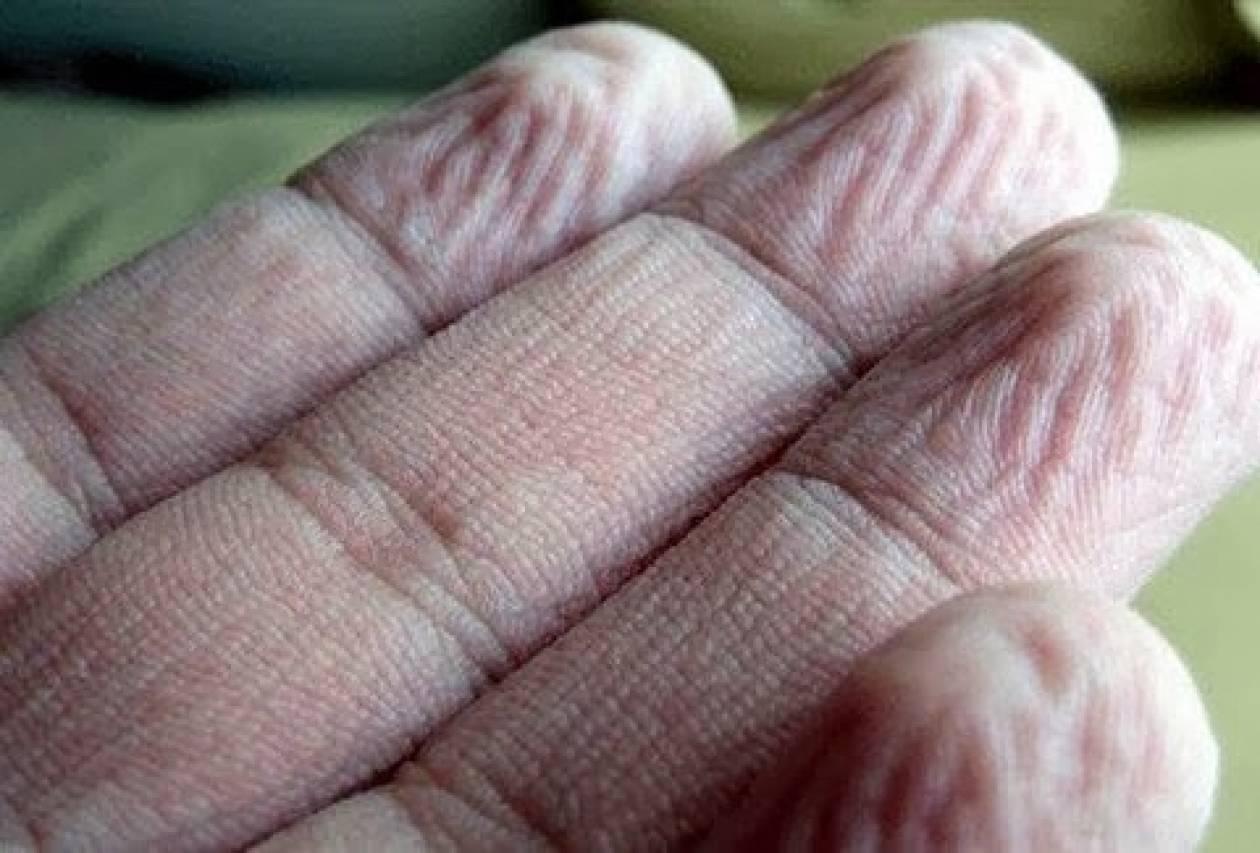 Το ήξερες;  Για ποιο λόγο ζαρώνουν τα δάχτυλα στο νερό;
