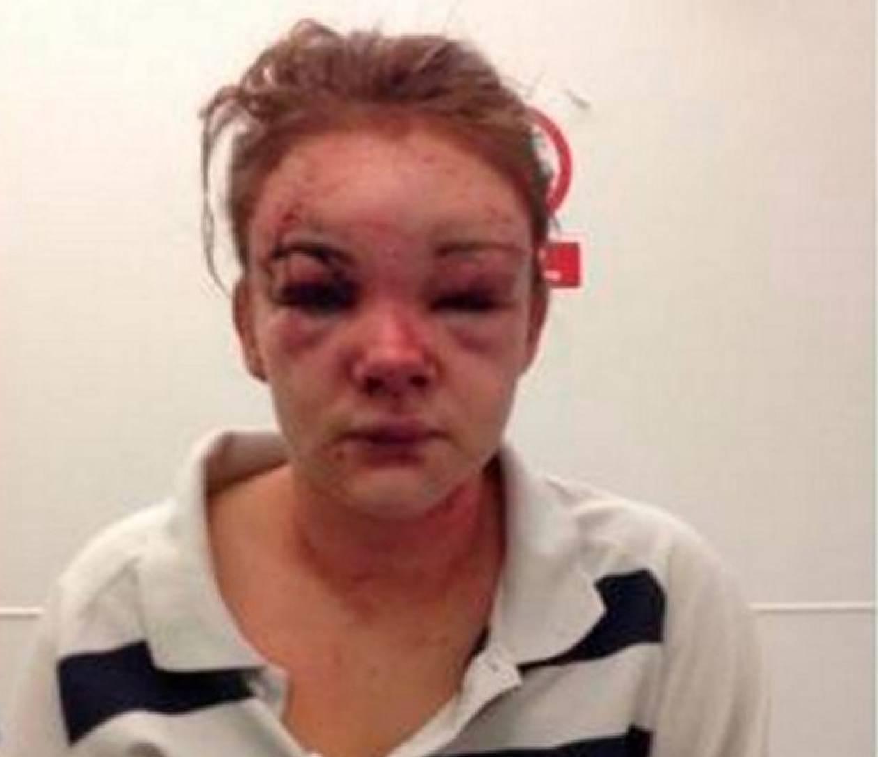 Εικόνες-ΣΟΚ: Την μαχαίρωσε στο πρόσωπο γιατί… τον είπε Χάρι Πότερ!