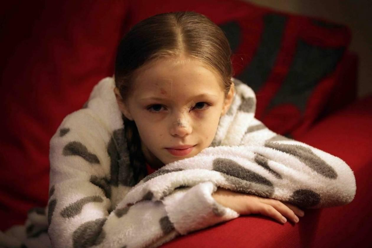Δείτε πώς έγινε ένα 9χρονο κορίτσι από ένα μπουκάλι! Σκληρές εικόνες