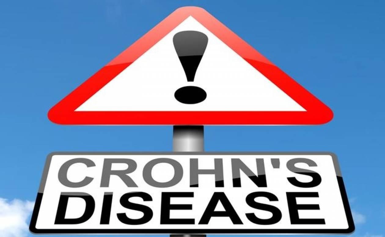 Ποιες τροφές πρέπει να αποφεύγουν οι ασθενείς με νόσο του Crohn