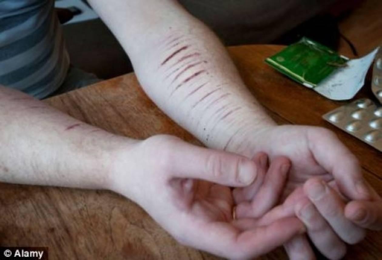 Η νέα τραγική μόδα των εφήβων: Τους αρέσει να αυτοτραυματίζονται!