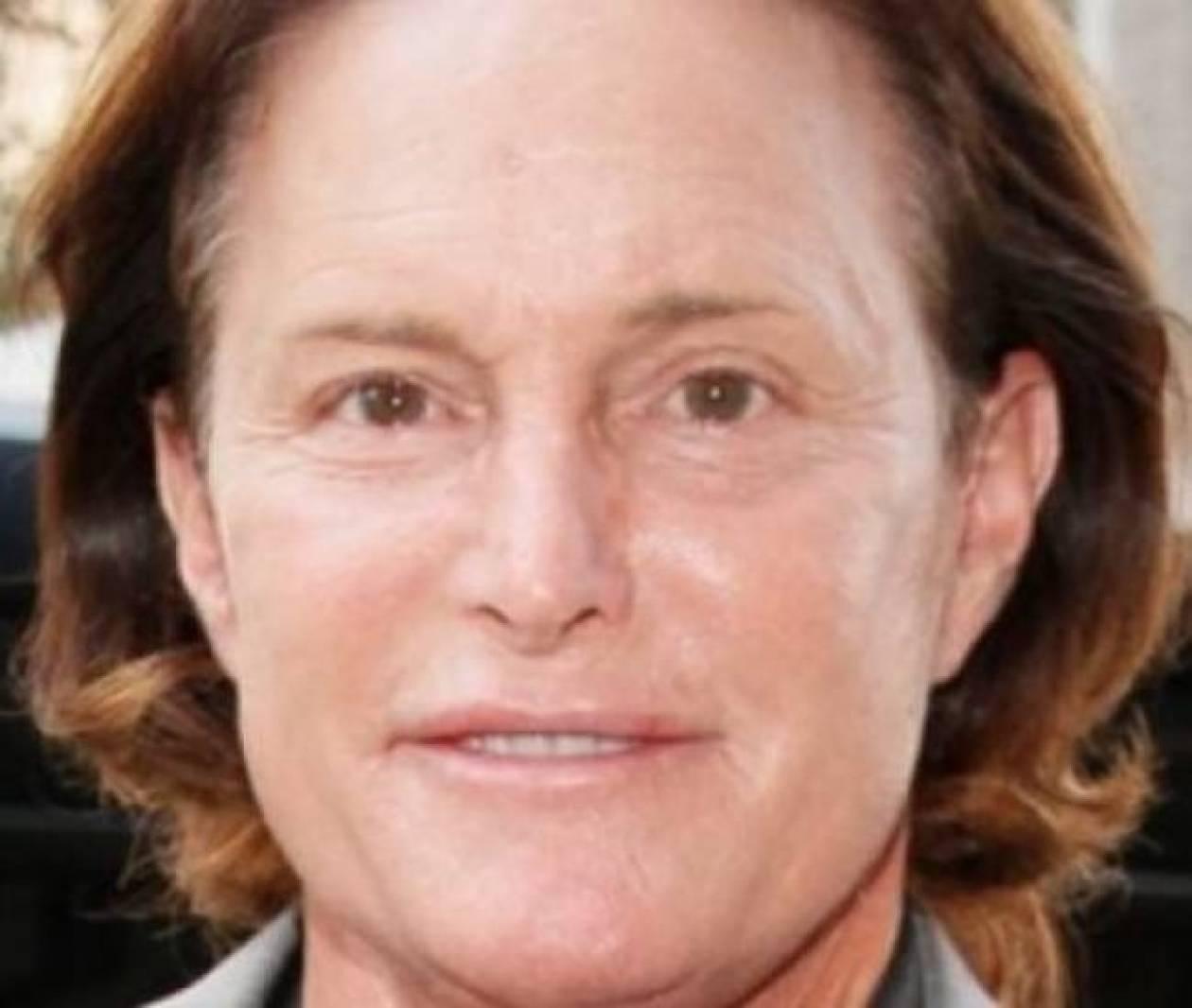 Από ποιο σύνδρομο υποφέρει ο Bruce Jenner;