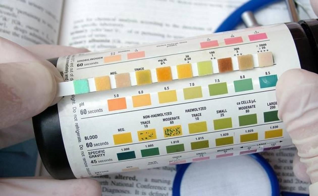 ΜΙΤ: Τεστ ούρων εντοπίζει τον καρκίνο