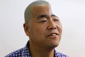Κίνα: Εκτυπωτής 3D τού έδωσε πίσω το μισό του κρανίο! (photos)