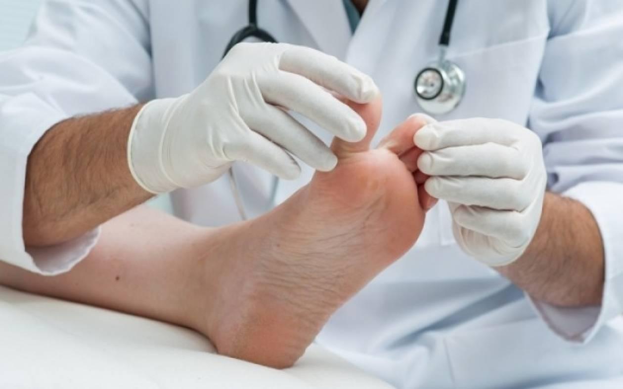 Μύκητες στα πόδια ή τα γεννητικά όργανα: Απαραίτητες συμβουλές πρόληψης & αντιμετώπισης