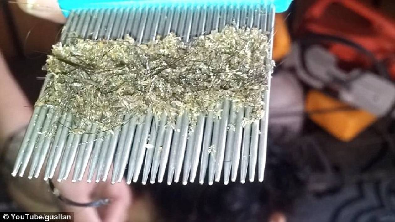 Δείτε το κεφάλι με τις περισσότερες... ψείρες (βίντεο)