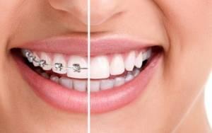 Δείτε σε 30 δευτερόλεπτα πώς τα σιδεράκια διορθώνουν τα δόντια