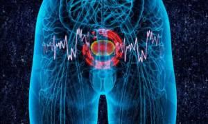 Καρκίνος στην ουροδόχο κύστη: Ποια είναι τα συμπτώματα
