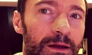Χιου Τζάκμαν: Mε selfie στο Instagram, ο Wolverine πολεμάει τον καρκίνο