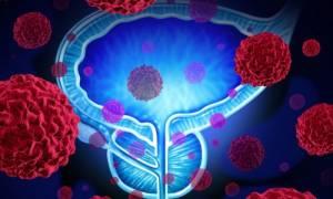 Καρκίνος προστάτη: Η διατροφή που επηρεάζει την ταχύτητα εξέλιξης της νόσου