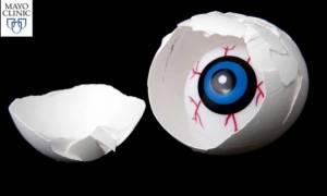 Κόκκινα μάτια: Τι προκαλεί το ενοχλητικό σύμπτωμα (λίστα)