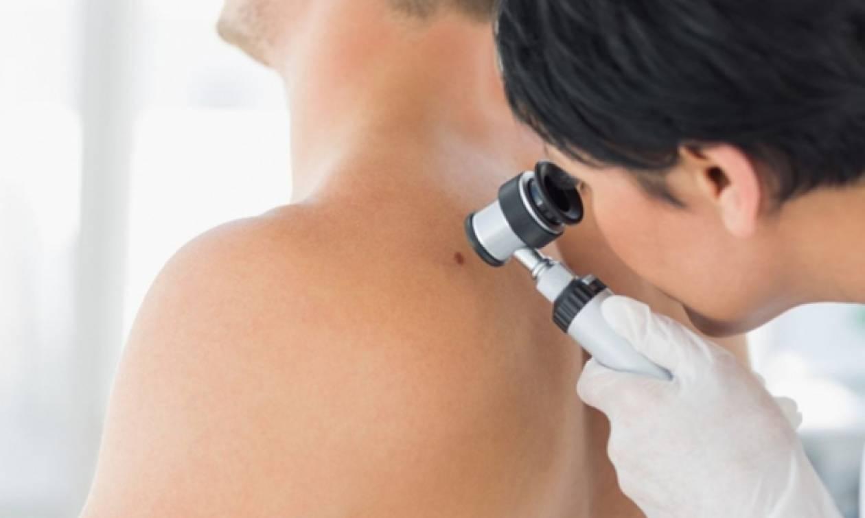 Δωρεάν εξετάσεις για καρκίνο του δέρματος σε όλη την Ελλάδα