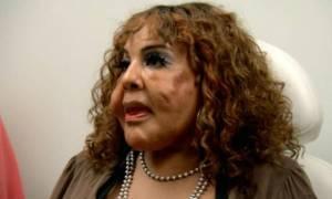 Βίντεο σοκ: Έκανε ενέσεις με τσιμέντο στο πρόσωπο και για να ομορφύνει και δείτε πώς έγινε!