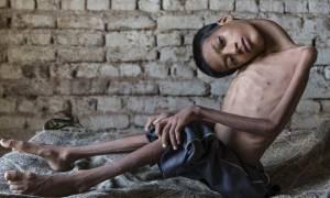 Σώθηκε από μία ξένη-Το 13χρονο αγόρι, με το κεφάλι που κρέμεται, μπορεί να ελπίζει