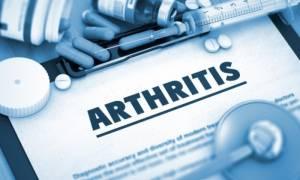 Ρευματοειδής αρθρίτιδα: Η συνήθεια που διπλασιάζει τον κίνδυνο για τις γυναίκες