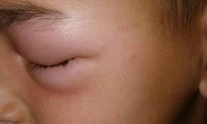 ΣΟΚ στη Θεσσαλονίκη: Δείτε πώς έγινε το μάτι παιδιού από τσίμπημα κουνουπιού! (pics)
