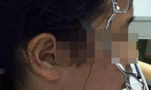 Πατέρας κάρφωσε ψαλίδι στο κεφάλι της κόρης του επειδή δεν διάβαζε! (ΠΡΟΣΟΧΗ ΣΚΛΗΡΕΣ ΕΙΚΟΝΕΣ)