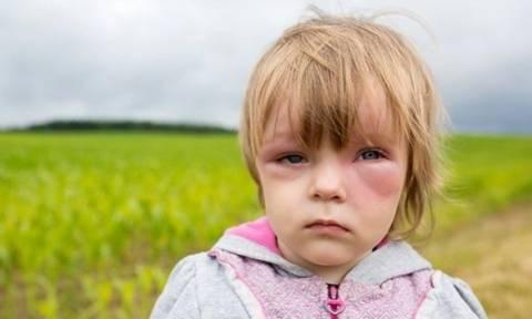 Αναφυλαξία στα παιδιά: Τι την προκαλεί, πώς αντιμετωπίζεται