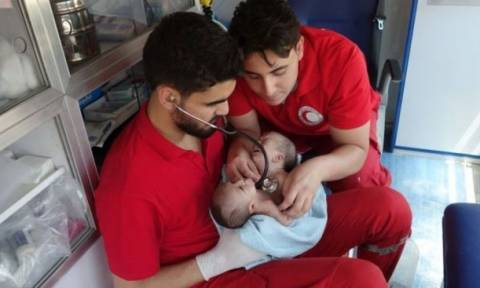 Conjoined twins born in Syria war zone