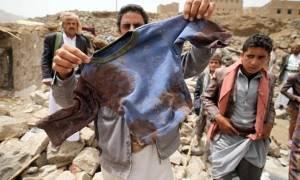 Υεμένη: Ο αραβικός στρατιωτικός συνασπισμός διαψεύδει ότι ευθύνεται για τον θάνατο δέκα παιδιών