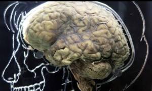Βρετανοί ερευνητές εντόπισαν το «κέντρο της γενναιοδωρίας» στον εγκέφαλο
