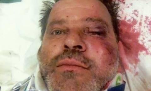 Πρωτοφανής επίθεση εναντίον εργαζομένου της ΔΕΗ στη Ζάκυνθο