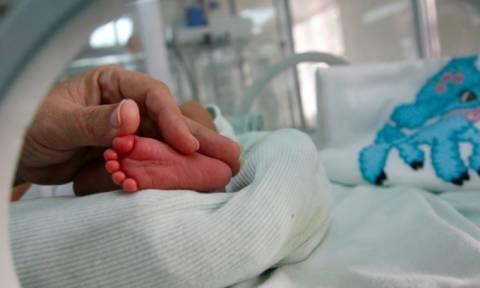 Βρέφος γεννήθηκε με σπάνια ασθένεια και όψη 80χρονου